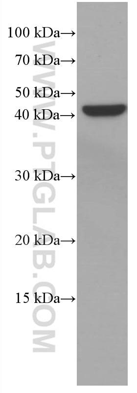 WB analysis of MCF-7 using 66828-1-Ig