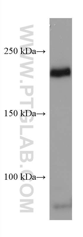 WB analysis of human placenta using 67407-1-Ig