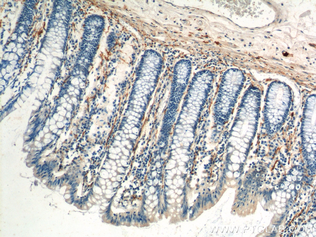 IHC staining of human colon using 16233-1-AP