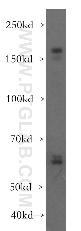 VLDLR Polyclonal antibody