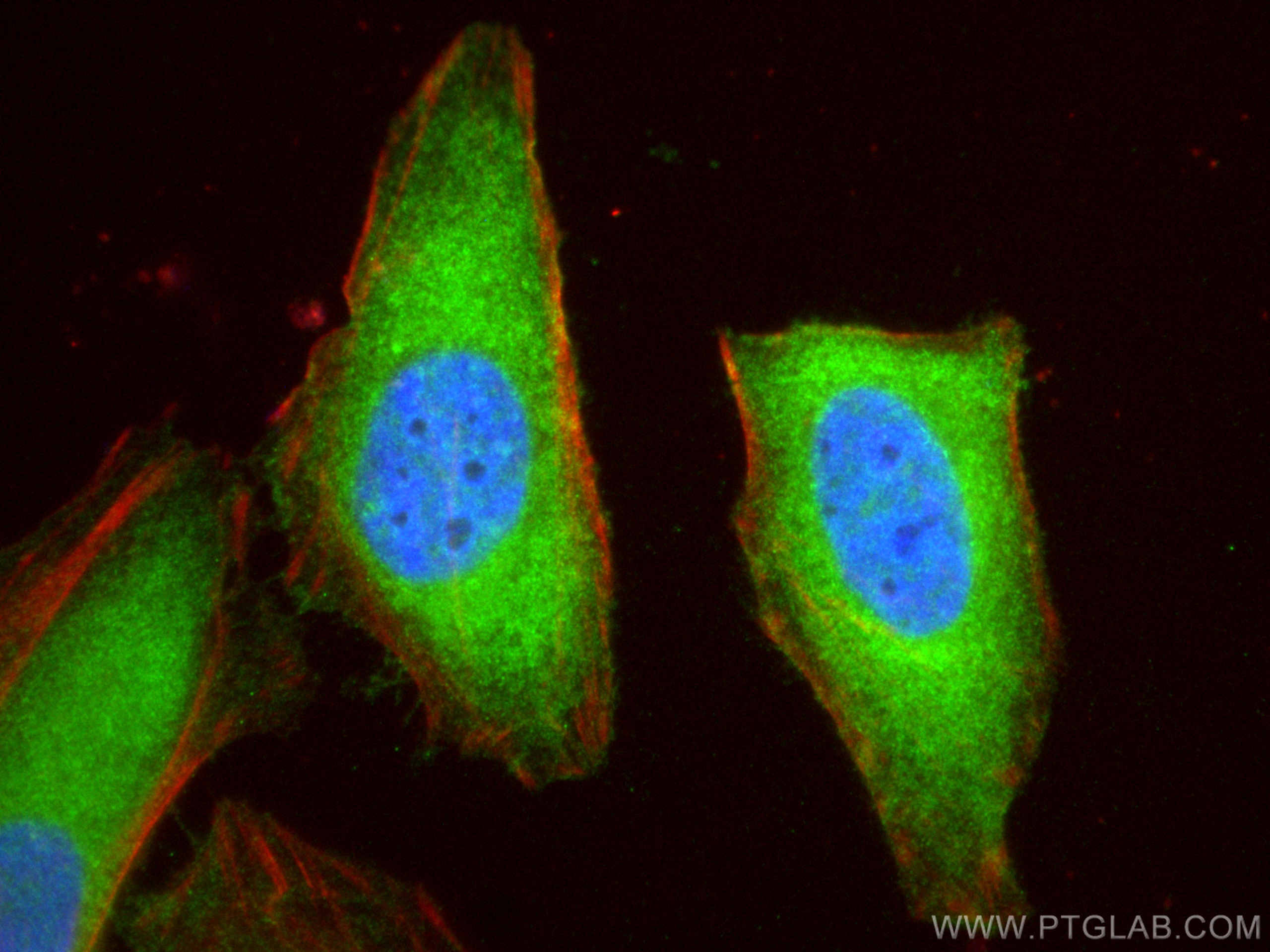 IF Staining of HeLa using 15786-1-AP