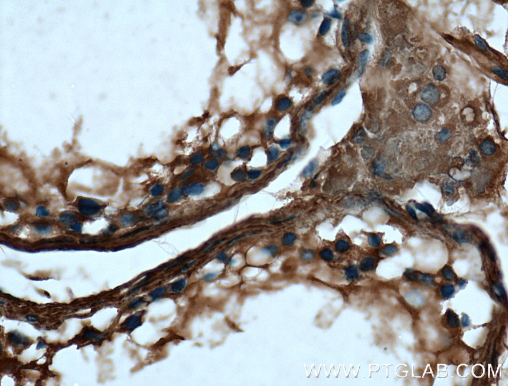 IHC staining of human testis using 66398-1-Ig