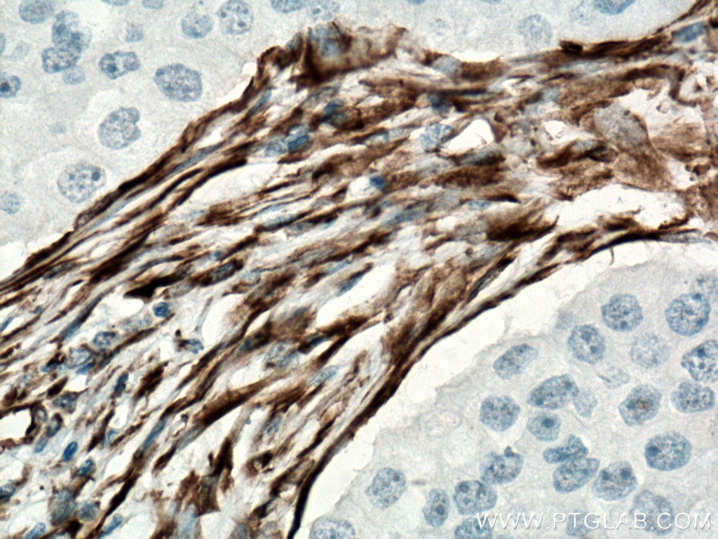 IHC staining of human breast cancer using 60330-1-Ig