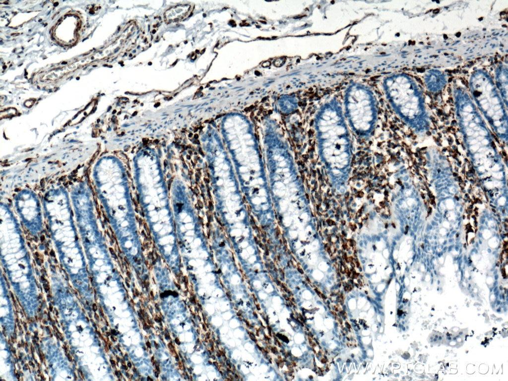 IHC staining of human colon using 60330-1-Ig