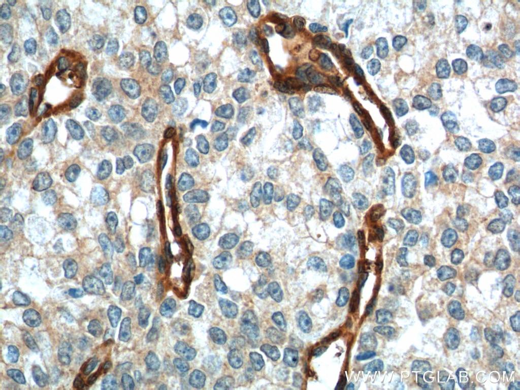 66305-1-Ig;human prostate cancer tissue