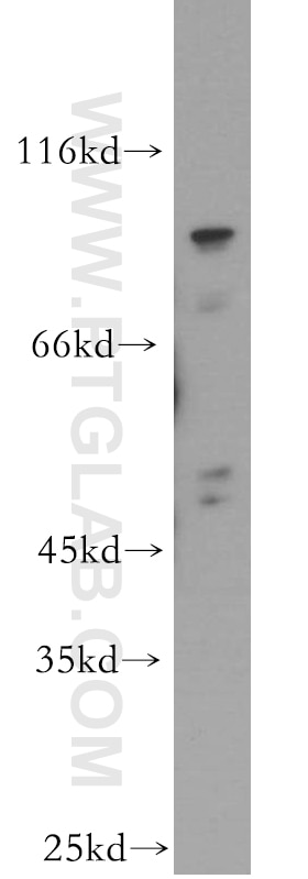 WDR24 Polyclonal antibody