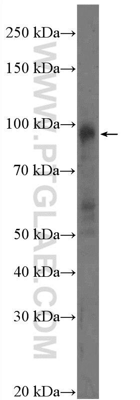 WB analysis of HeLa using 14375-1-AP