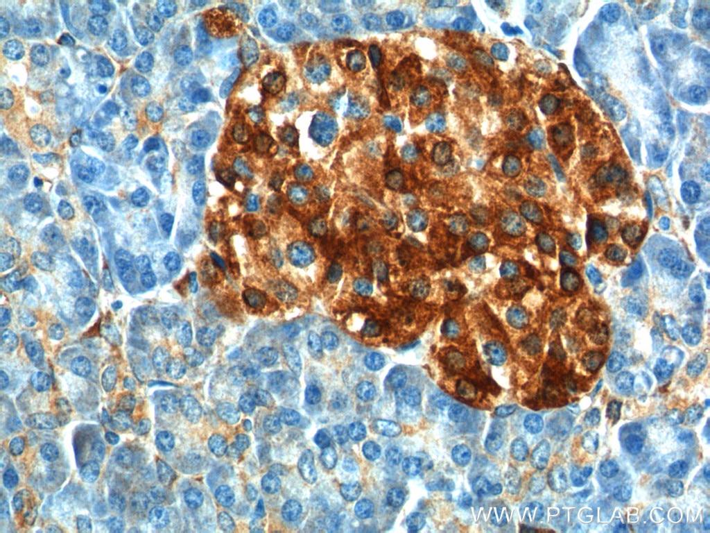 11558-1-AP;human pancreas tissue