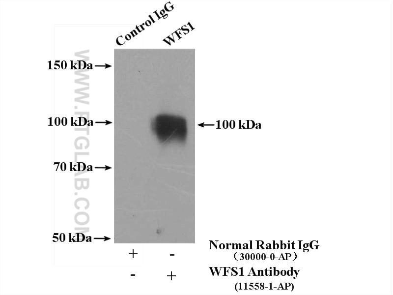 11558-1-AP;mouse brain tissue