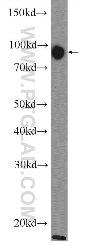 11558-1-AP;HeLa cells