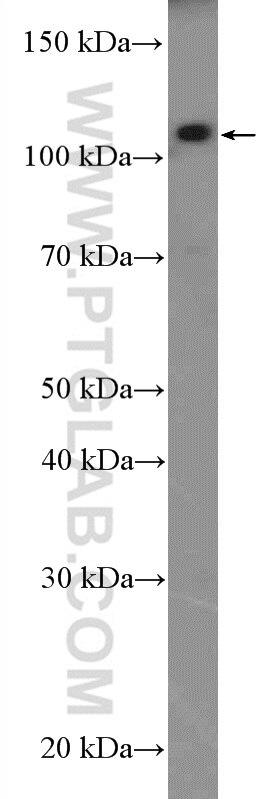 11558-1-AP;SH-SY5Y cells