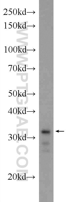 WB analysis of HEK-293 using 24168-1-AP