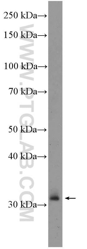 WB analysis of rat spleen using 25997-1-AP