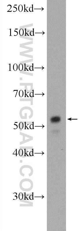 WB analysis of HepG2 using 15817-1-AP