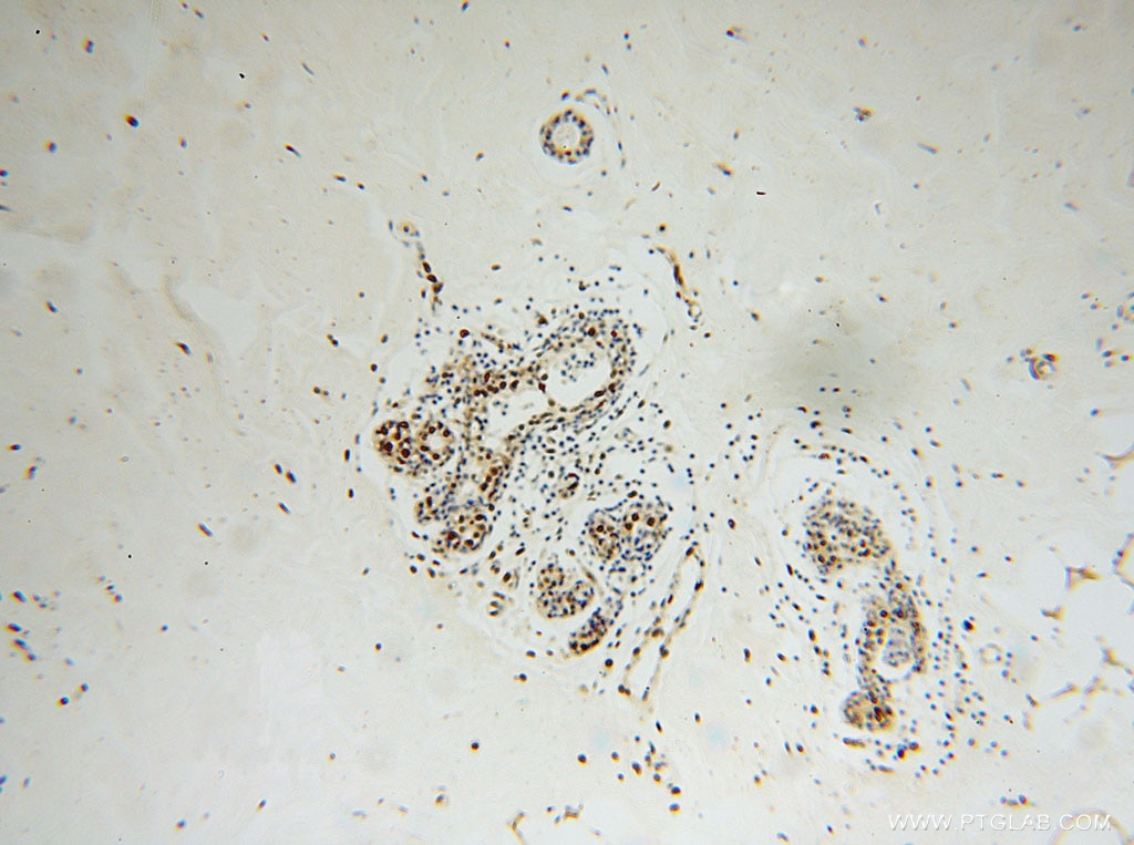 IHC staining of human colon cancer using 16389-1-AP