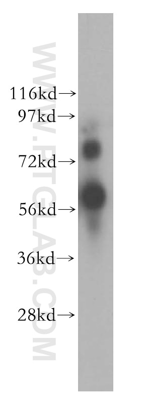 WB analysis of MDA-MB-231 using 10425-1-AP
