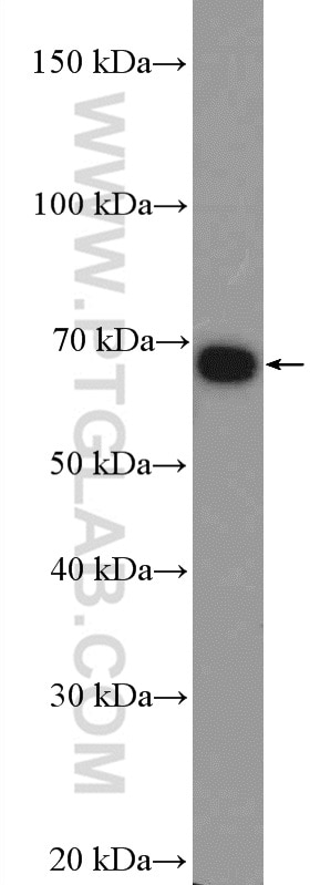 ZBTB33 Polyclonal antibody