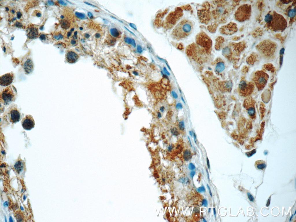 IHC staining of human testis using 16820-1-AP