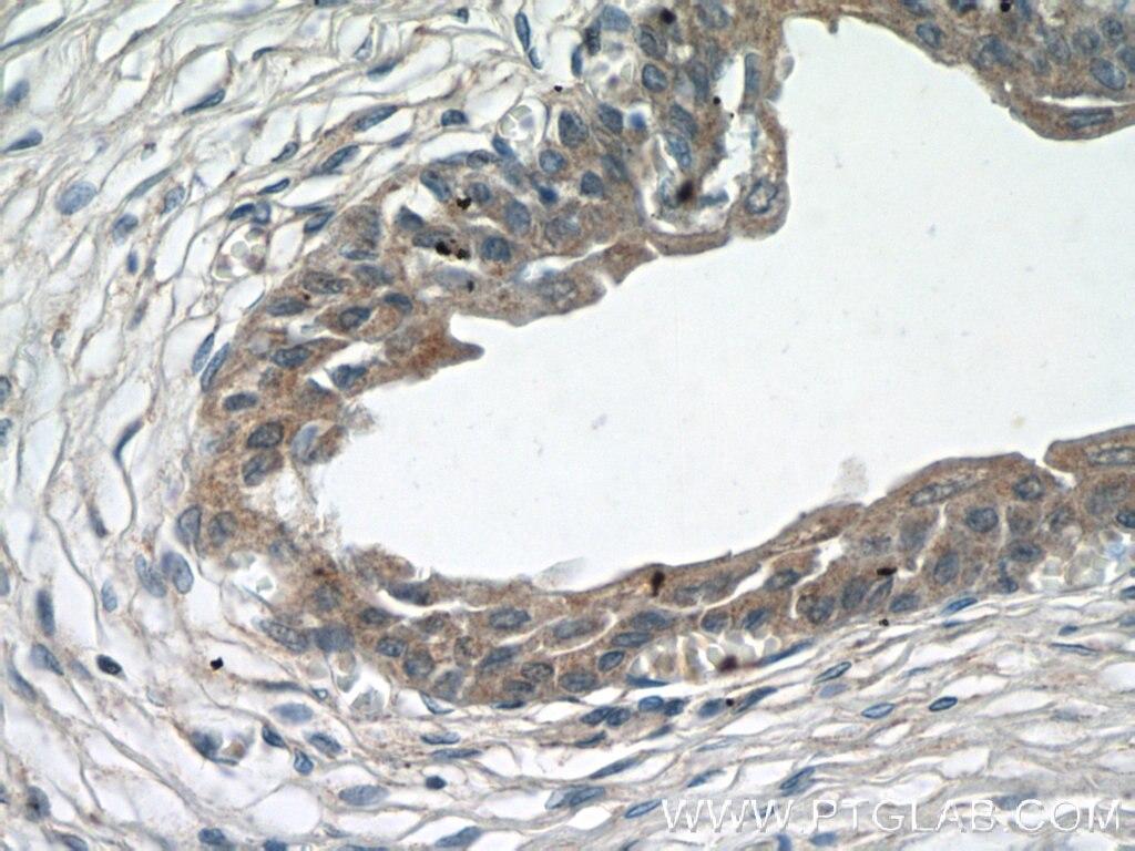 IHC staining of human bladder using 12737-1-AP