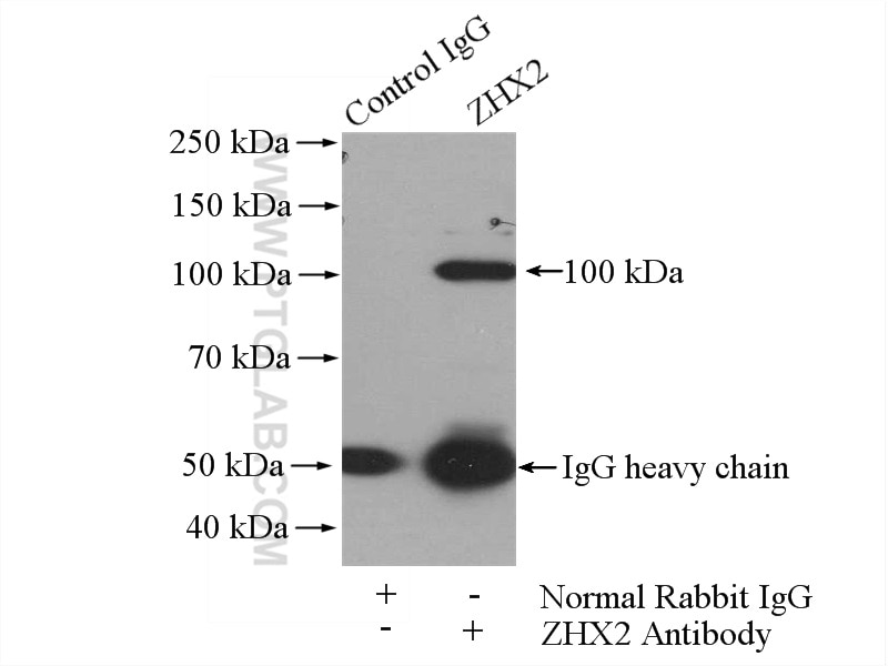 IP experiment of mouse brain using 20136-1-AP