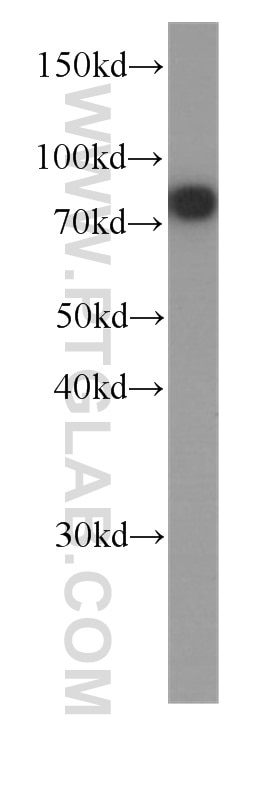 WB analysis of HeLa using 60254-1-Ig