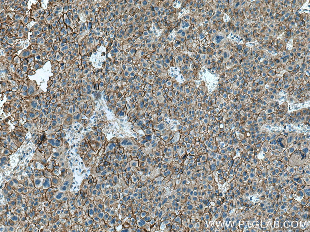 IHC staining of human liver cancer using 17565-1-AP