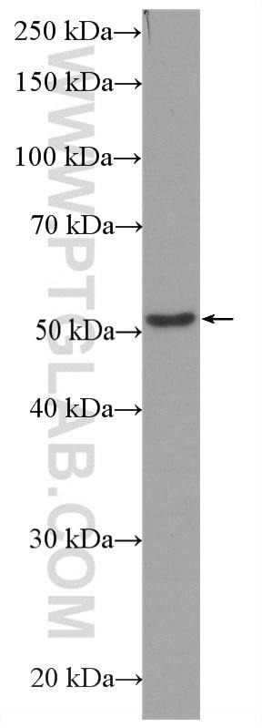 WB analysis of HeLa using HRP-66240