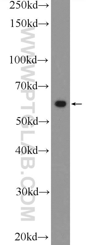 WB analysis of A431 using 25978-1-AP