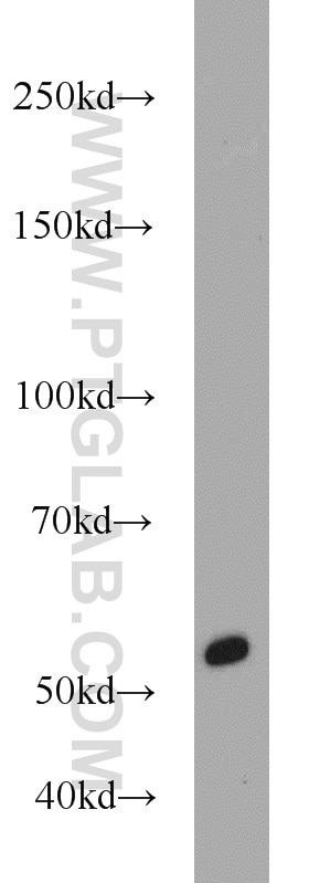 50430-2-AP;Recombinant protein protein