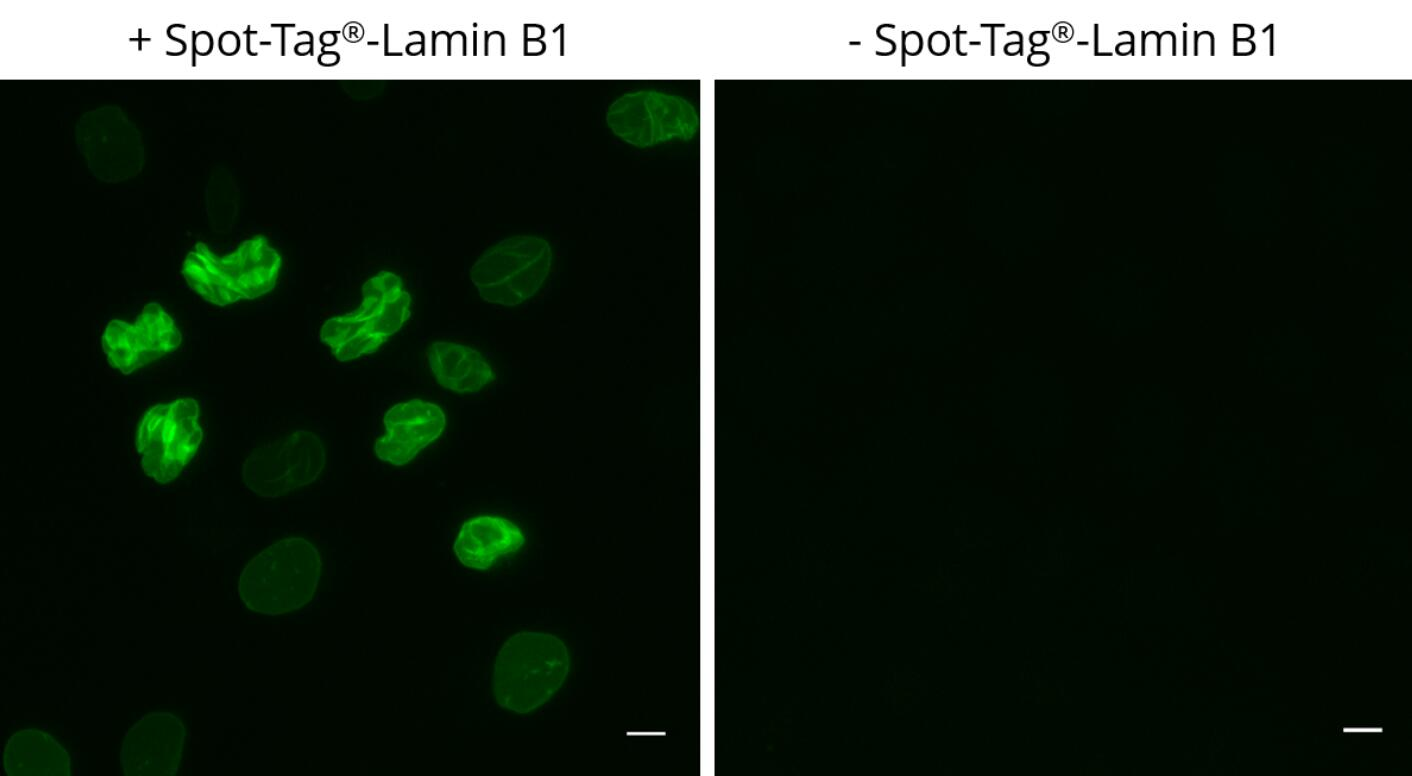 HeLa cells transiently expressing Spot-Tag®-Lamin B1 were immunostained with Spot-Label® Alexa Fluor® 488 (ebAF488, 1:800). Scale bar, 10 µm.