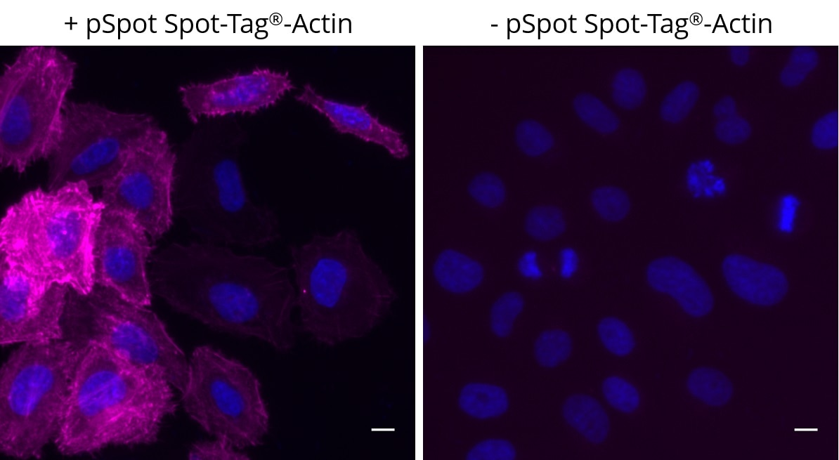 Left: HeLa cells transiently expressing pSpot Spot-Tag®-Actin (ev-31) were immunostained with Spot-Label® Alexa Fluor® 647 (magenta, ebAF647, 1:800) and DAPI (blue). Right: Control staining, no background noise; HeLa cells without pSpot Spot-Tag®-Actin expression were immunostained with Spot-Label® Alexa Fluor® 647 (magenta, ebAF647, 1:800) and DAPI (blue). Scale bar, 10 μm. Images were acquired with the Thermo Scientific CellInsight CX7, 20X objective.