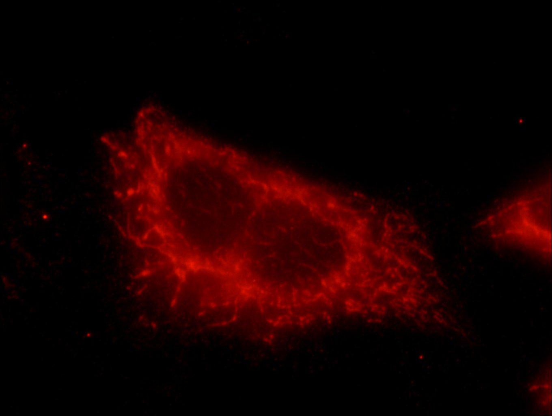 hamartin IF 20988-1-AP hamartin Antibody  Hamartin, KIAA0243, LAM, TSC, TSC1, tuberous sclerosis 1, Tuberous sclerosis 1 protein;IF