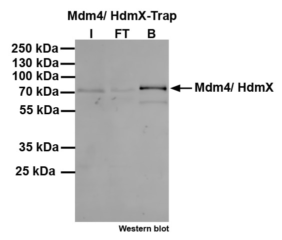 Pull-down of Mdm4/HdmX: Western blot I: Input, FT: Flow-through, B: Bound.