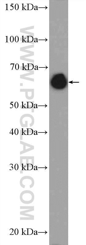 Lamin A/C Polyclonal antibody