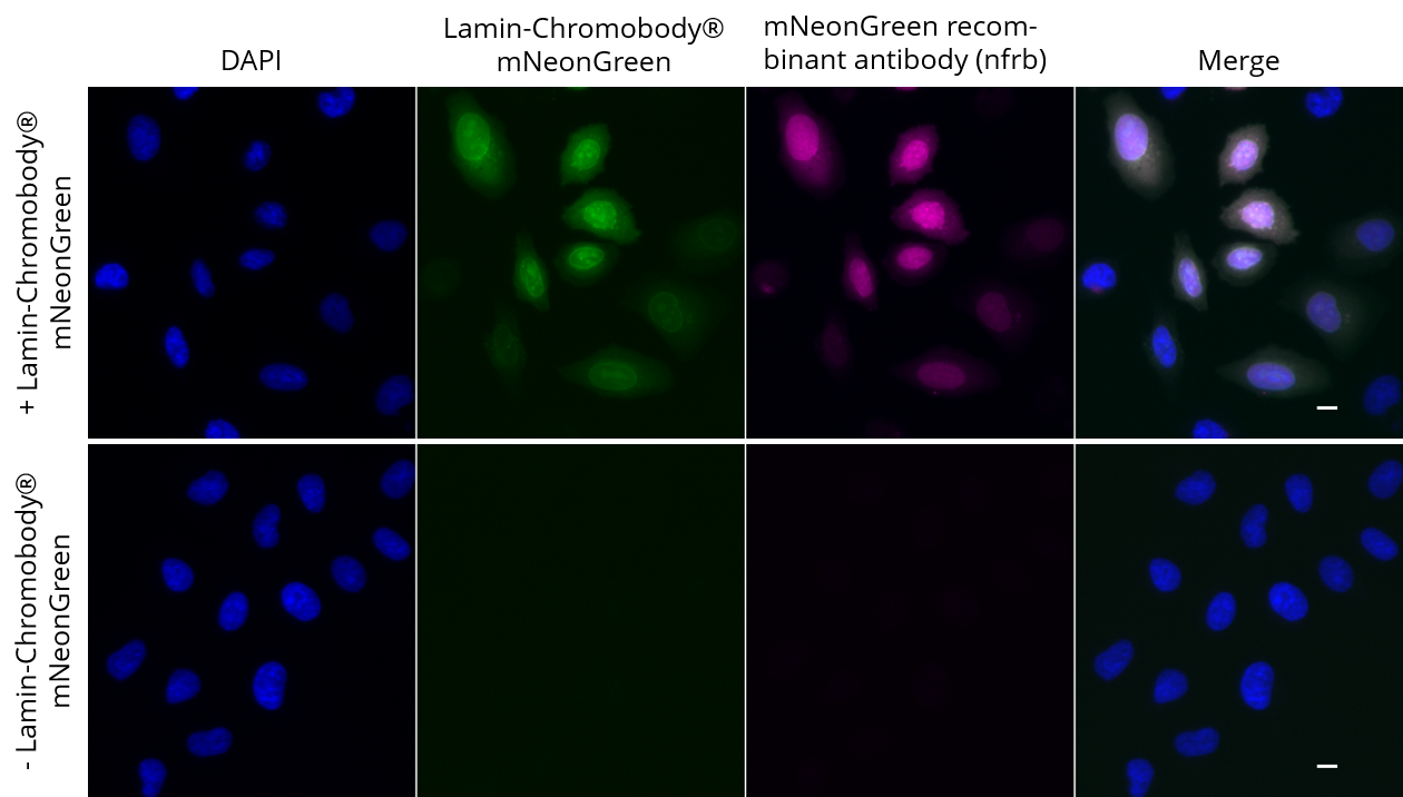 HeLa cells transiently expressing Lamin-Chromobody®-mNeonGreen were immunostained with mNeonGreen recombinant antibody, VHH-rabbit IgG Fc fusion [CTK0203] (nfrb, 1:1,000) and Nano-Secondary® alpaca anti-human IgG/anti-rabbit IgG, recombinant VHH, Alexa Fluor® 647 [CTK0101, CTK0102] (srbAF647-1, 1:1,000). Scale bar, 10 µM.
