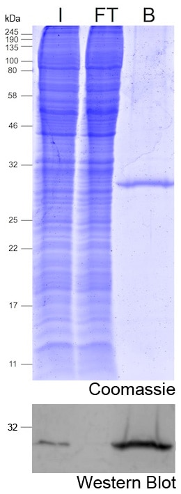 Immunoprecipitation with mNeonGreen-Trap Magnetic Agarose: Coomassie and Western blot I: Input, FT: Flow-through, B: Bound.