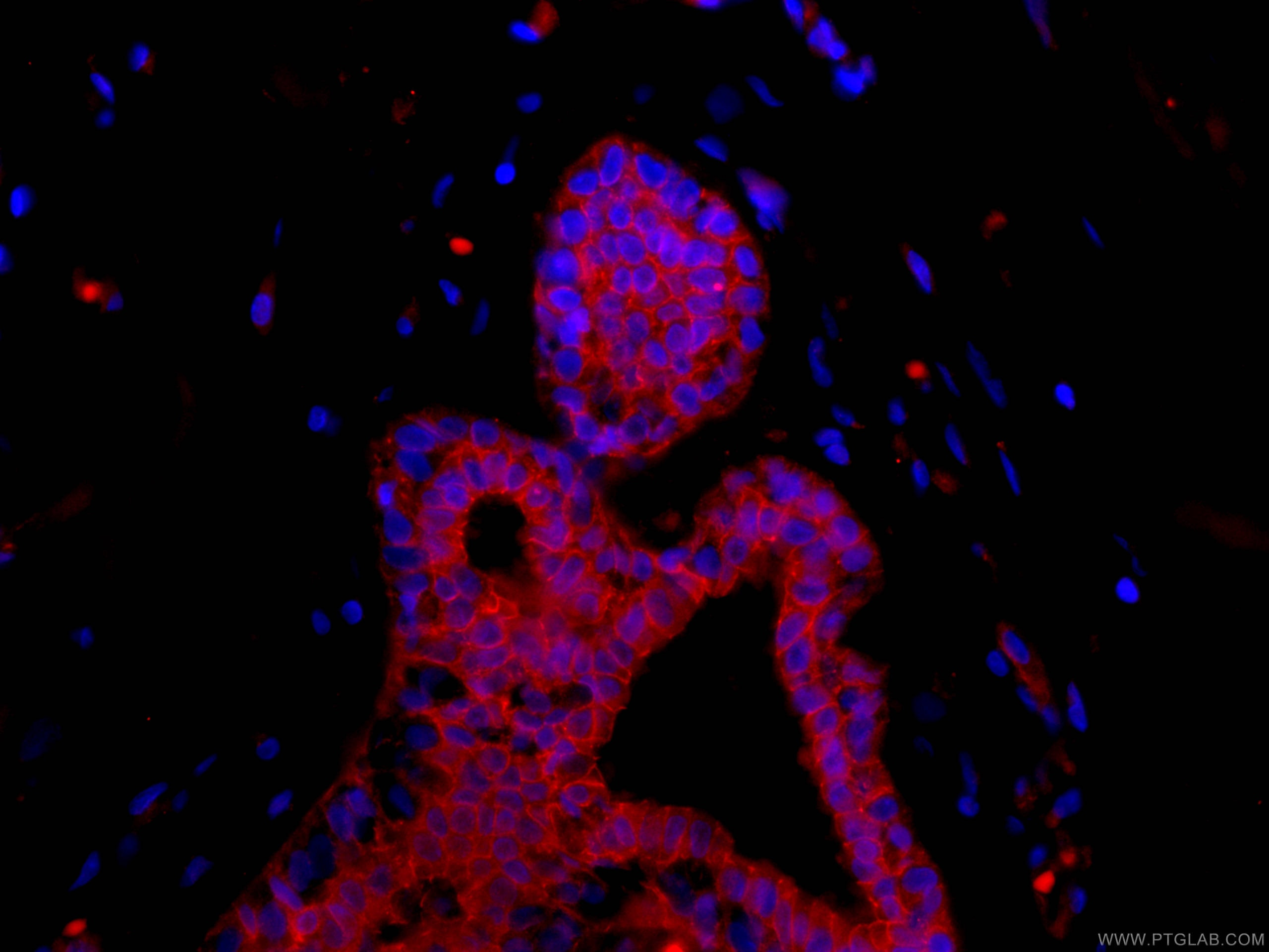 IF Staining of human breast cancer using CL594-66208