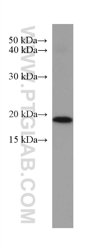 WB analysis of Neuro-2a using 67362-1-Ig
