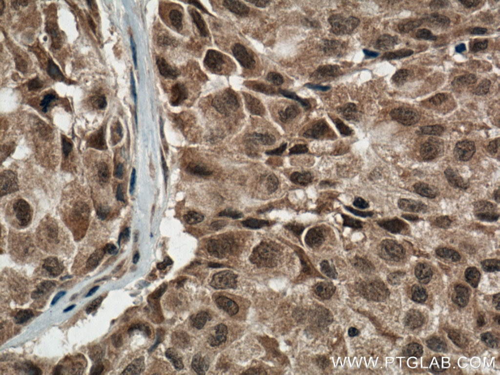 IHC staining of human lung cancer using 66234-1-Ig
