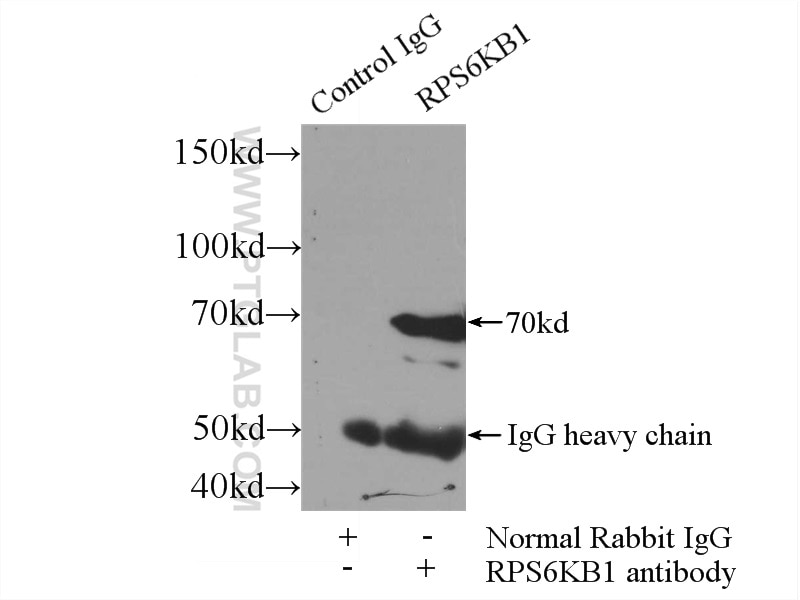 IP experiment of HeLa using 14485-1-AP