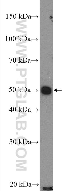 WB analysis of MCF-7 using 26587-1-AP