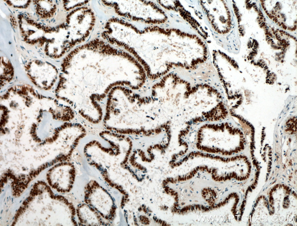 IHC staining of human ovary tumor using 21383-1-AP