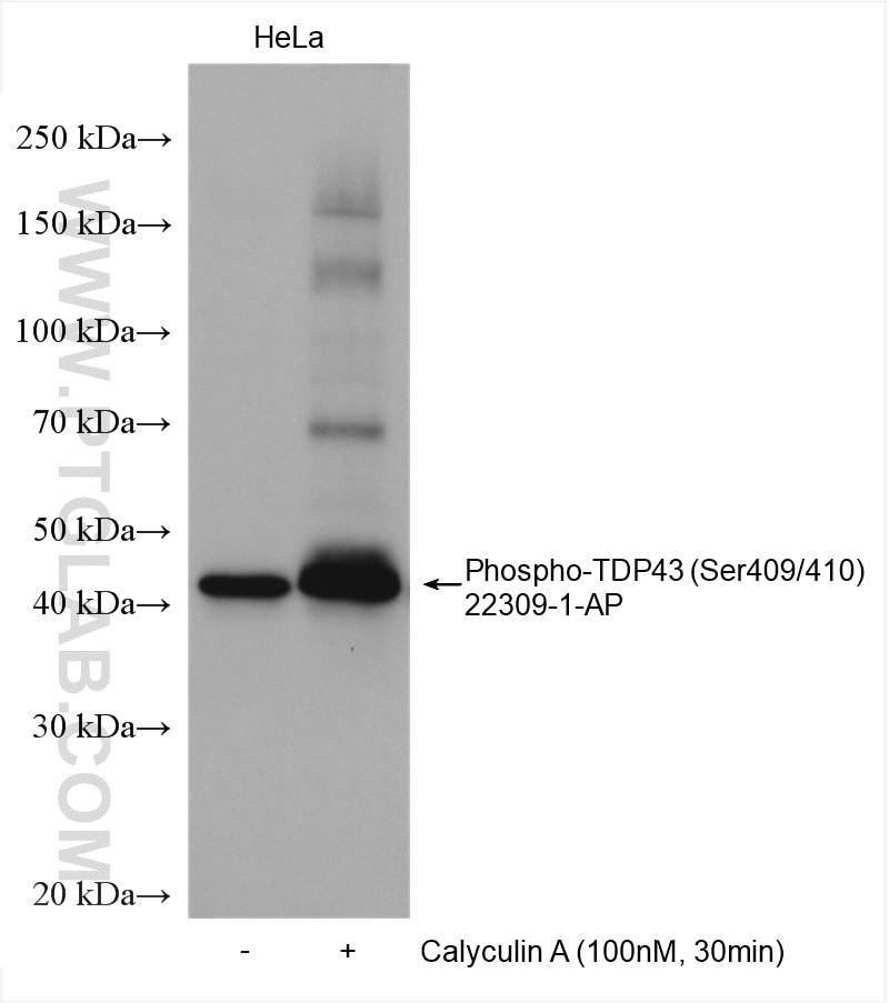 WB analysis using 22309-1-AP