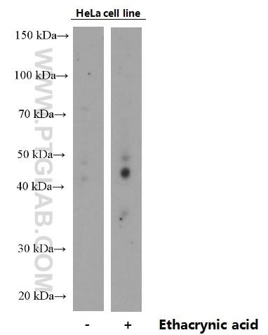 Phospho-TDP43 (Ser409/410)