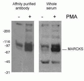 WB analysis of Mouse J774 Macrophage cells using 10018-3-AP