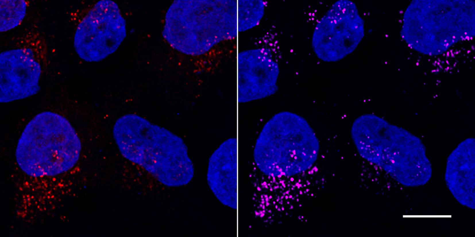 Confocal images of HeLa cells transiently transfected with LC3B-mCherry (red) and immunostained with RFP-Booster Alexa Fluor647 (magenta). Nuclei were stained with DAPI (blue). Scale bar, 10 µm. Images were recorded at the Core Facility Bioimaging at the Biomedical Center, LMU Munich.