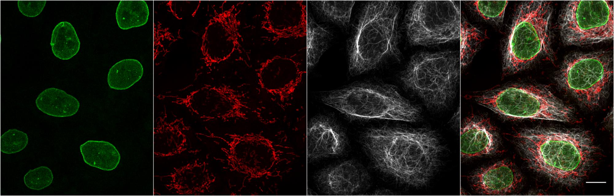 One-step immunostaining is the simultaneous incubation of mouse IgG1 primary antibody and anti-mouse IgG1 Nano-Secondary. This method reduces incubation and hands-on time. Simultaneous incubation also supports multiplexing, tissue penetration, and cell staining for flow cytometry.