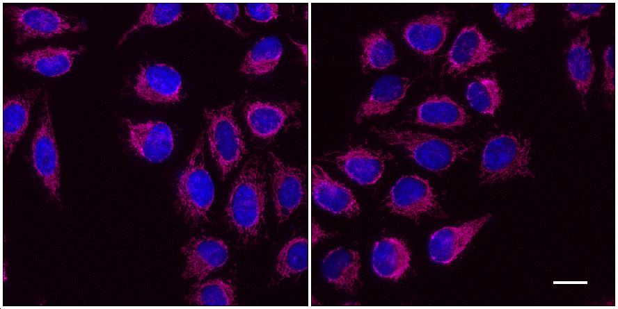 One-step staining (left) vs. sequential staining (right) of HeLa cells with anti-COX4 (mitochondria) mouse IgG1 monoclonal primary antibody + alpaca anti-mouse IgG1 VHH Alexa Fluor® 647 (magenta). Cell nuclei are stained with DAPI (blue). Scale bar, 20 μm.