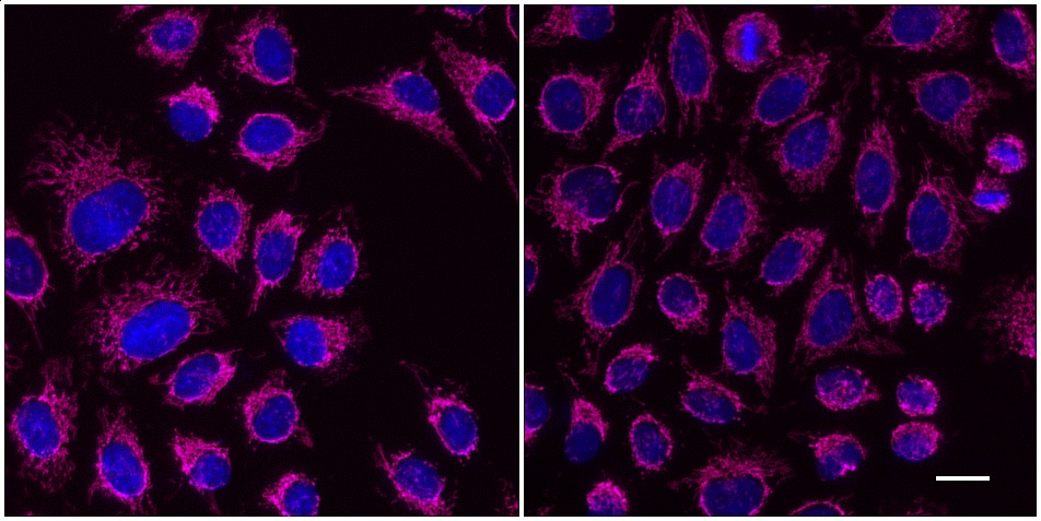 One-step staining (left) vs. sequential staining (right) of HeLa cells with anti-MOT (mitochondria) mouse IgG3 monoclonal primary antibody + alpaca anti-mouse IgG3 VHH Alexa Fluor® 647 (magenta). Cell nuclei are stained with DAPI (blue). Scale bar, 20 μm.