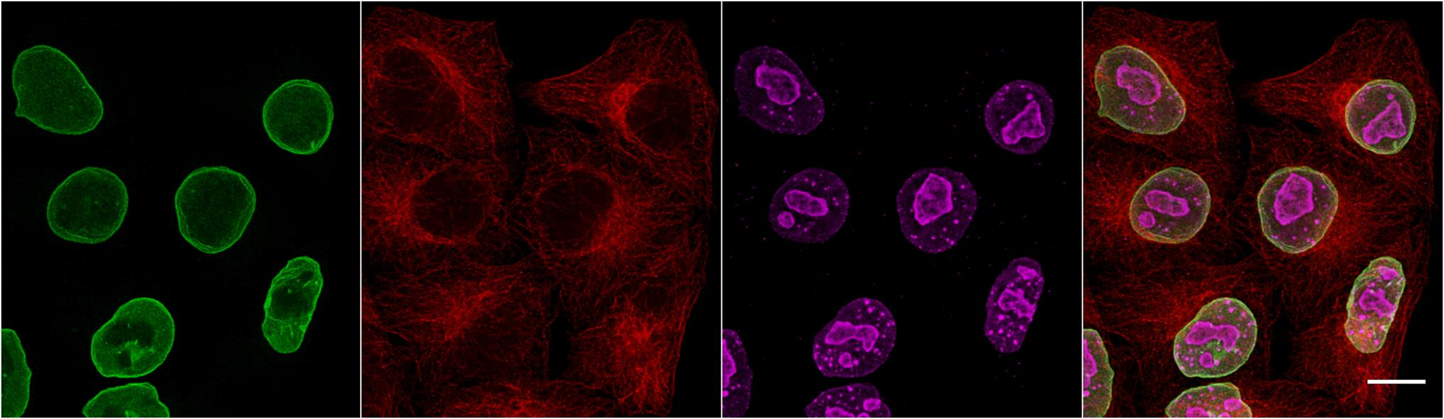 Multiplexed immunostaining of HeLa cells with two alpaca anti-mouse Nano-Secondaries and one conventional secondary antibody. Green: mouse IgG3 anti-Lamin + alpaca anti-mouse IgG3 VHH Alexa Fluor® 488. Red: mouse IgG1 anti-Tubulin + alpaca anti-mouse gG1 VHH Alexa Fluor® 568. Magenta: rabbit anti-Ki67 + conventional polyclonal secondary anti-rabbit-AF647. Scale bar, 10 μm. Images were recorded at the Core Facility Bioimaging at the Biomedical Center, LMU Munich.